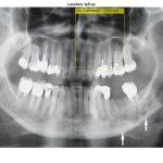 تشخیص ضایعات کیست دهان با پردازش تصویر